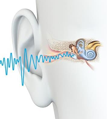 vidu poter slyha - Виды и степени потерь слуха